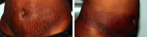 Stretch Marks Before And Immediately After