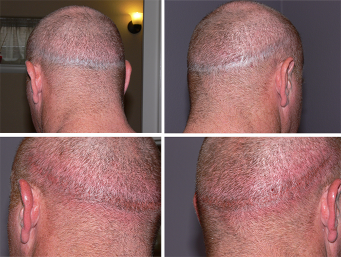 Scalp Before And Immediately After