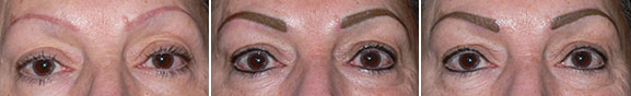 Before Brow Correction and Eyeliner, Immediately After, and Immediately After 2nd Touchup